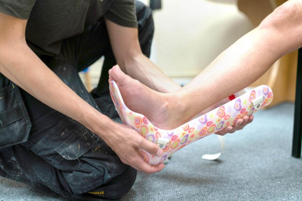 Sfaturi pentru o gleznă luxată sau fracturată