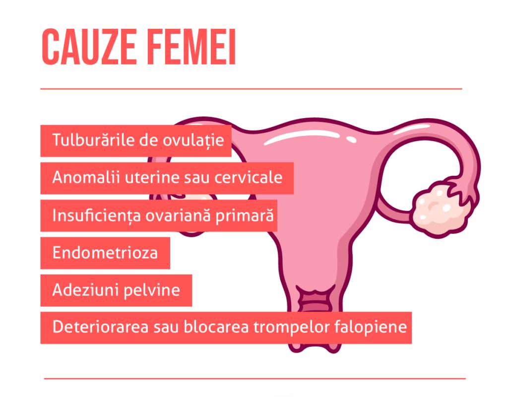 Cauzele infertilitatii | Clinica de fertilitate Gynera