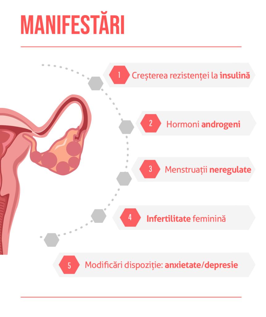 Sindromul ovarelor polichistice, dieta și fertilitatea ?