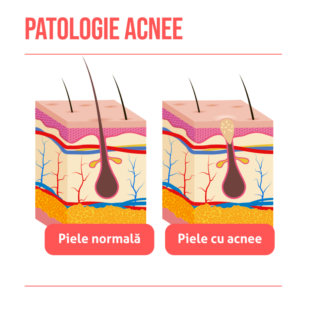 Tumori de piele • Papilom • Carcinom • Melanom » Tratamente OZONO IASI