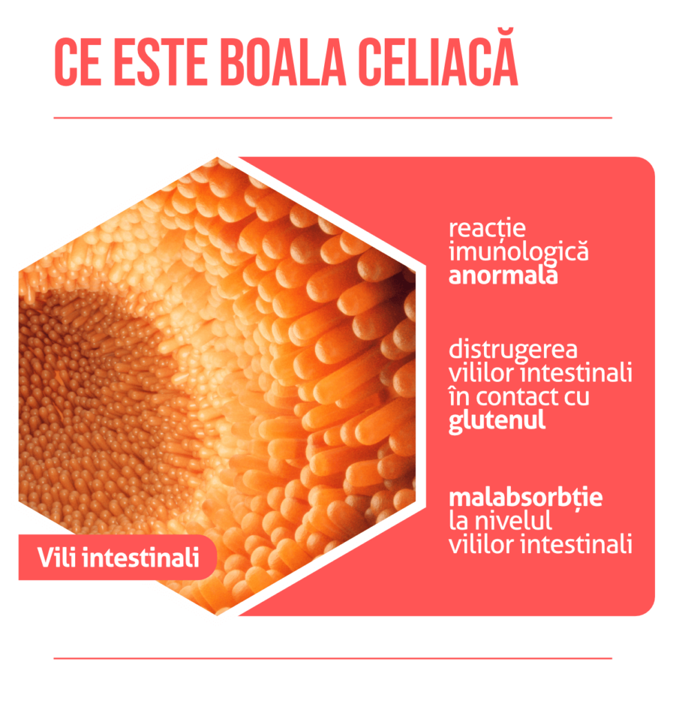 pierderea în greutate a bolii celiace