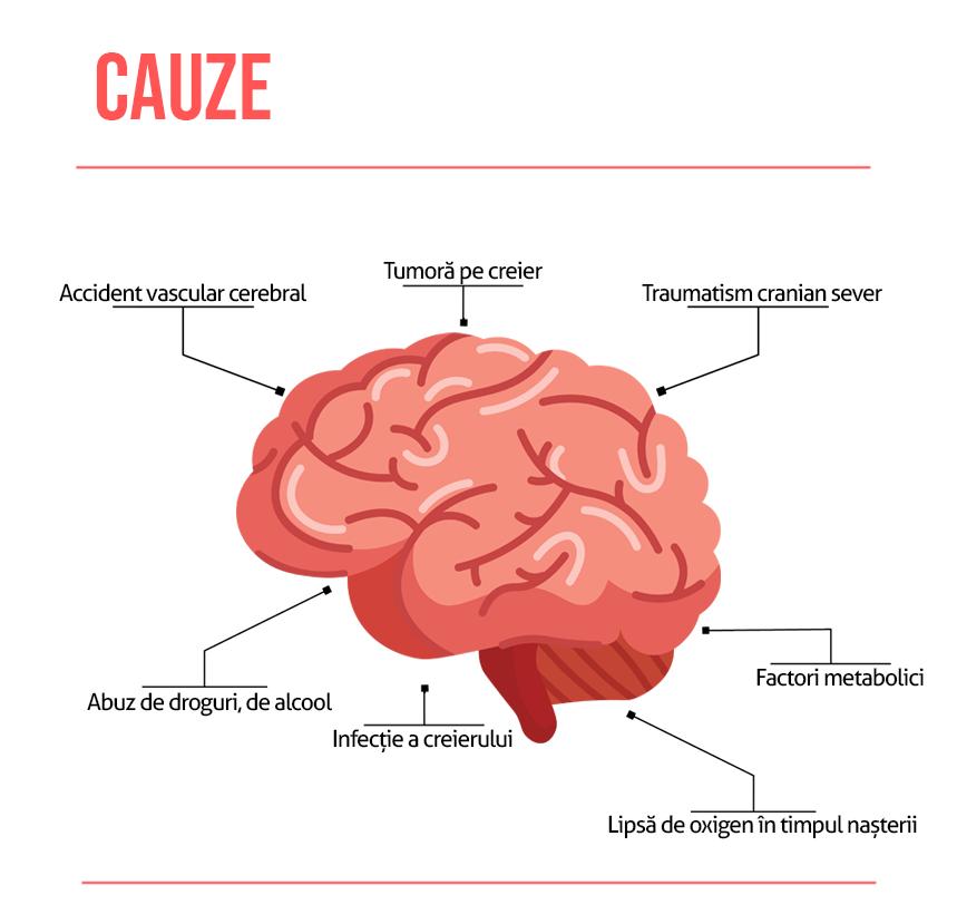 Cauze epilepsie
