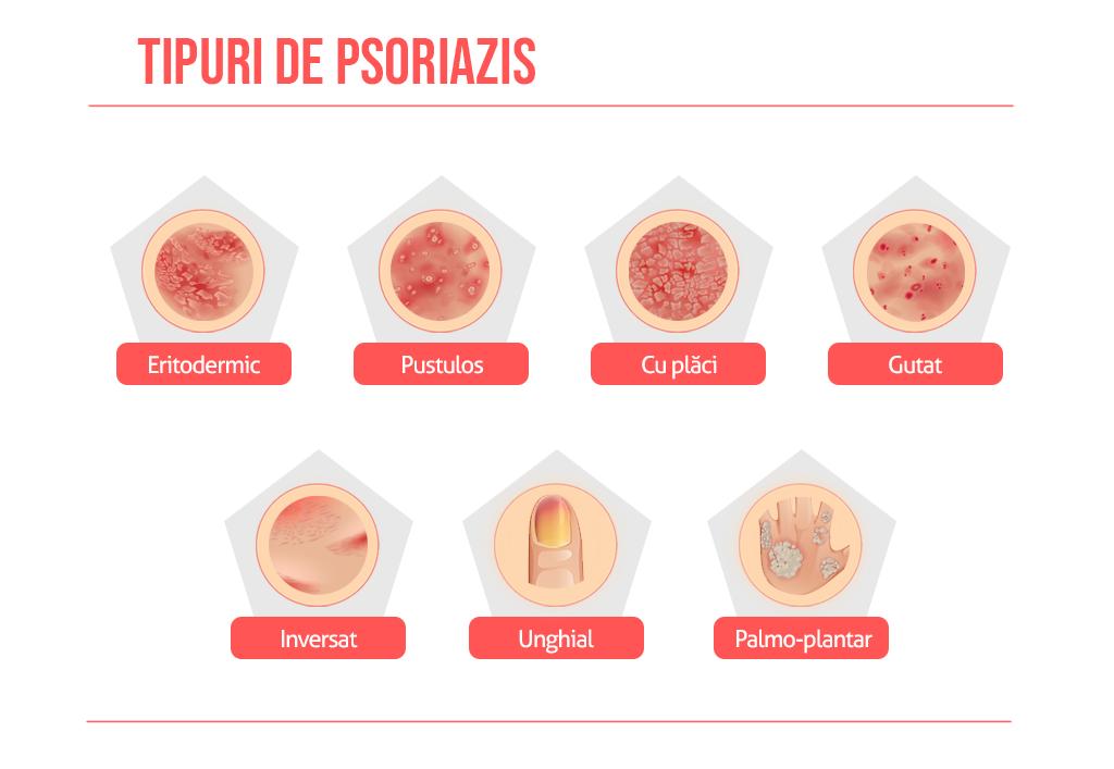 tipuri de psoriazis