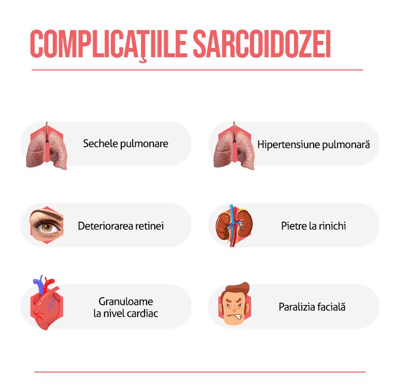Complicatii sarcoidozei