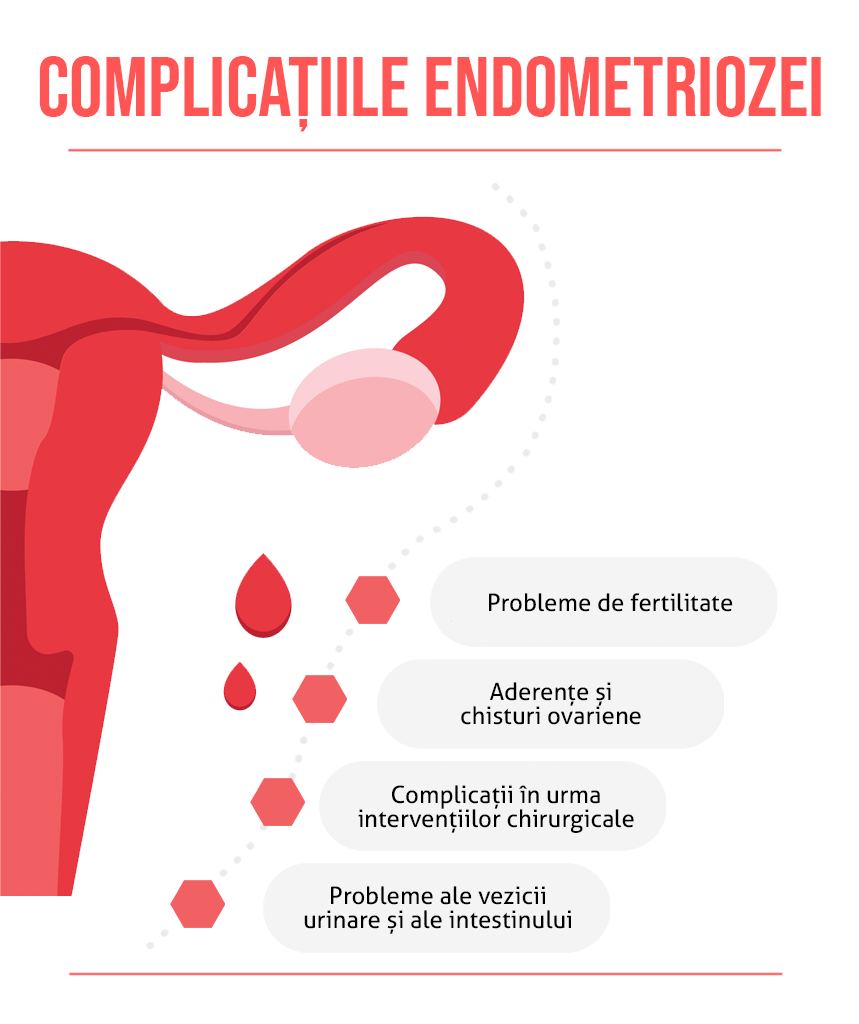 Complicatii endometriozei